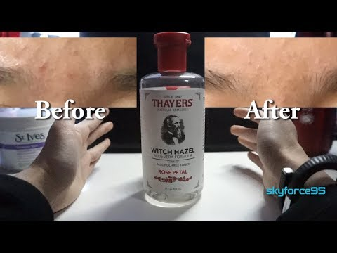Thayers Alcohol-free Toner Witch Hazel with Aloe Vera Review