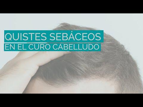 Quistes Cuero Cabelludo, Dr. Torres Fortich, Santiago De Compostela