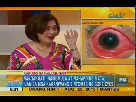 Simple ways to avoid having sore eyes | Unang Hirit - YouTube