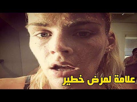 التعرق بعد الطعام علامة لمرض خطير.. أعراضة خطيرة !!