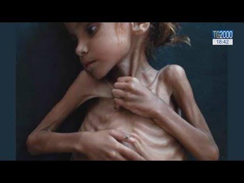 5ed9935edc L'Onesto – La strage silenziosa della fame in Yemen, in 3 anni morti 85  mila bimbi sotto i 5 anni