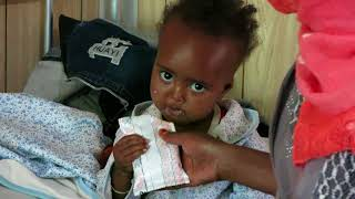 RUTF Ready to Use Therapeutic Food for malnourished childs in Gambo, Ethiopia