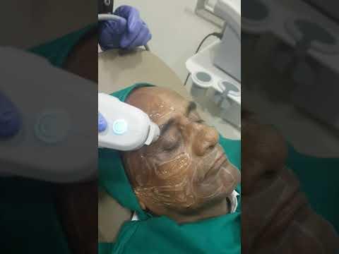 HIFU ( HIGH INTENSITY FOCUSED ULTRASOUND) – Heta Skin Hair