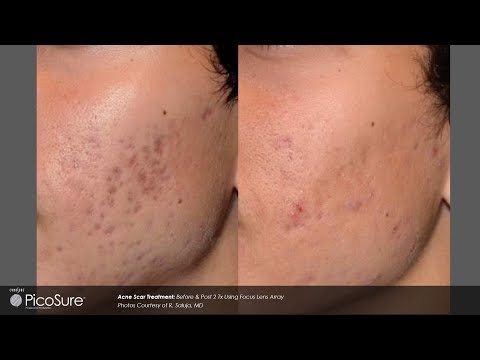 Laser Acne Scar Removal - Pulse light Clinic London