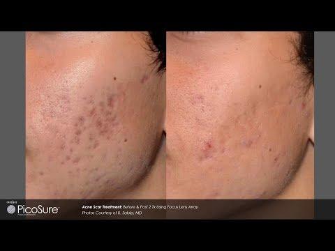 Laser Acne Scar Removal - Pulse light Clinic London