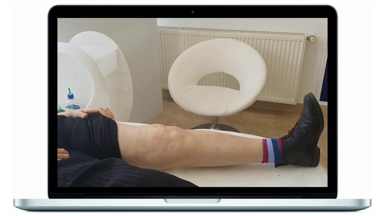 de ce durează articulația endoprotezică a genunchiului)