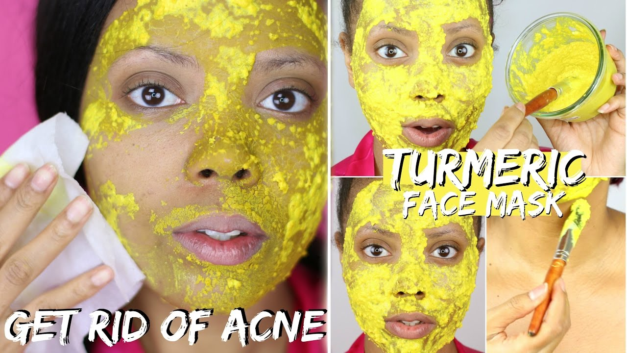 Best diy turmeric face mask before and after photos best acne best diy turmeric face mask before and after photos best acne treatment to fight acne tastepink solutioingenieria Images