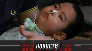 После травмы маленький Селим борется за жизнь