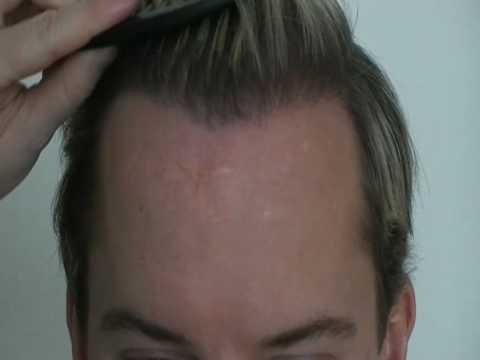 www.hattingenhair.com Haartransplantation 2900 Grafts NW3