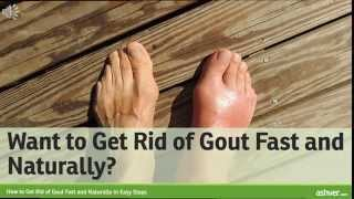 How to Get Rid of Gout Fast and Naturally in Easy Steps