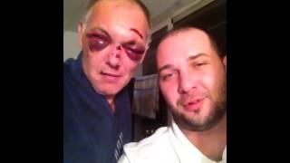 ММА.разбитое лицо#нокауты#травмы#приколы#Коля все нормально#шишки#под глазами#