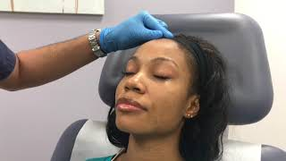 Dr. Patel performs a chemical peel (Skinceuticals Micropeel 20)