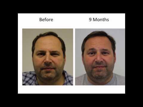 hair loss forum