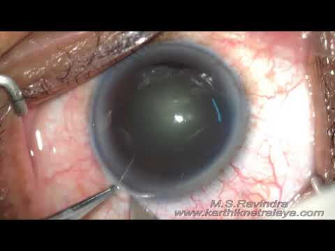 Cataract in India