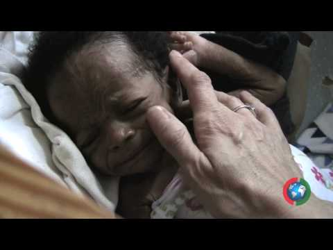 """CAN-DO.org - Project Haiti - Baby """"""""Miracle"""" rescue - 2010"""