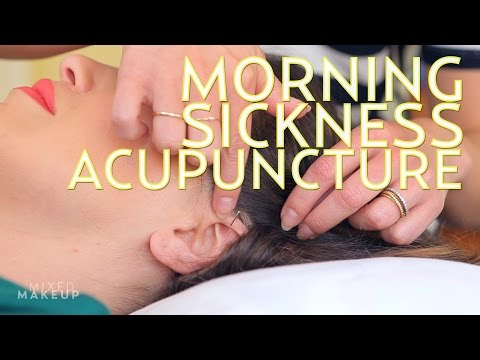 A Natural Morning Sickness Remedy is Acupuncture | The SASS with Sharzad and Susan