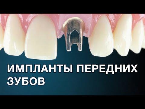 Имплантация передних зубов. Особенности протезирования.