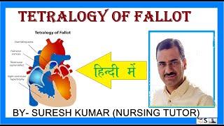 Tetralogy of Fallot (TOF): Outcomes (5 of 5).