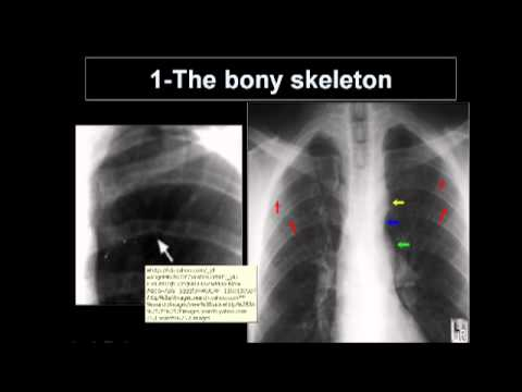 pediatric x-ray (dr. Amr Donia ) M.D