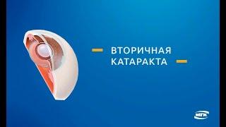 Вторичная катаракта  (фиброз задней капсулы хрусталика)(Что такое вторичная катаракта (фиброз задней капсулы хрусталика): причины и лечение (YAG-лазерная дисцизия)...., 2016-03-29T17:41:07.000Z)