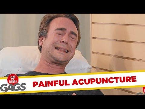 Extreme Acupuncture Prank