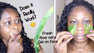 I USED FRESH ALOE VERA GEL ON MY FACE FOR 5 DAYS & THIS HAPPENED😱
