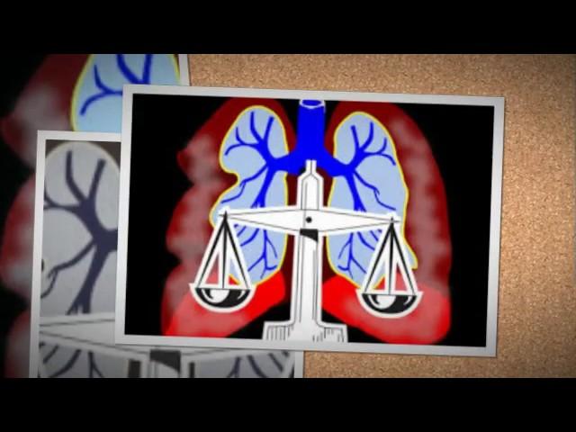 maryland  mesothelioma  lawyers,america,canada,uk,usa,italy