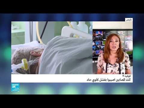 كوفيد 19: ثلث المصابين عانوا من فشل كلوي حاد  - نشر قبل 6 ساعة