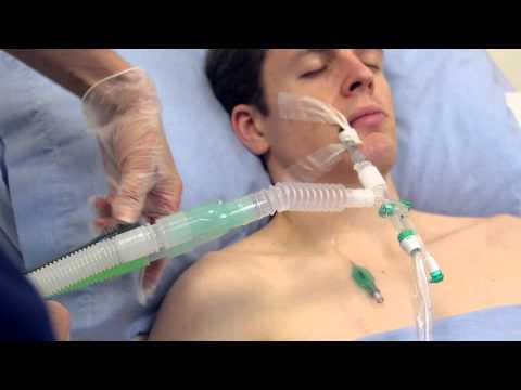apr�s tube respiratoire pour ventilateur est retir� trachseal™ closed suction systems