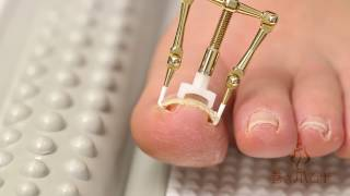 видео коррекция вросшего ногтя
