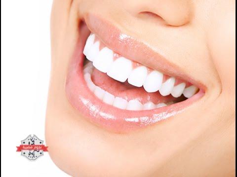 تبييض الاسنان في اقل من 9