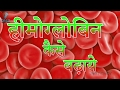 Anemia Treatment | Hemoglobin  कैसे बढ़ाये ? Daily Health Care