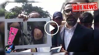Hot News! Hasil Visum Putra Jeremy Thomas Sungguh Mengejutkan - Cumicam 17 Juli 2017