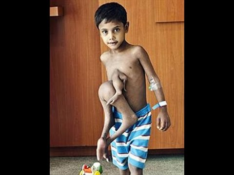 Download The incredible Indian Boy With 8 Limbs In India (shocked )