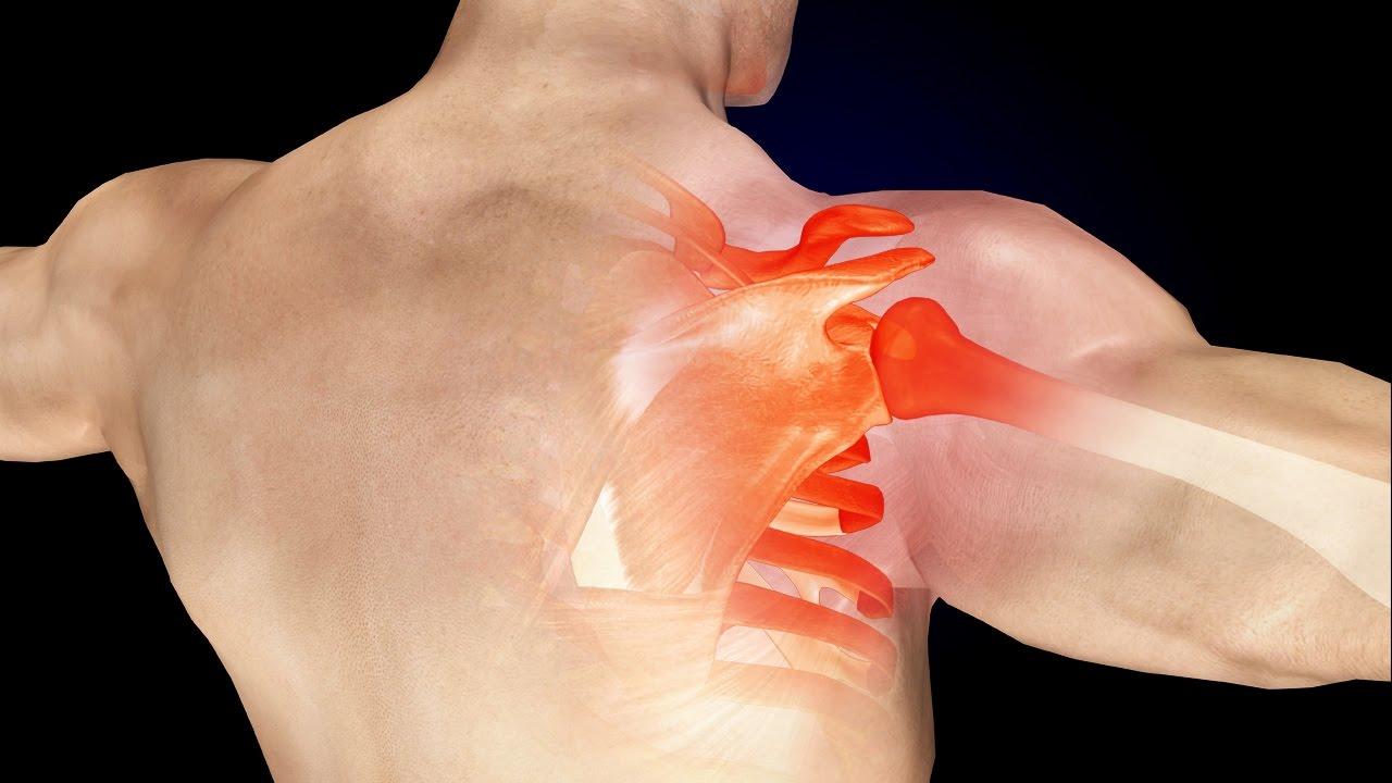 علاج ألم الكتف