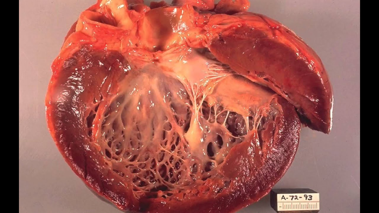 heart and cardiac muscle The myocardium is the muscular middle layer of the heart wall that contains the cardiac muscle tissue myocardium makes up the majority of the thickness and mass of the heart wall and is the part of the heart responsible for pumping blood.