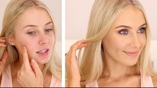 HOW TO COVER ACNE/BLEMISHES! Thumbnail