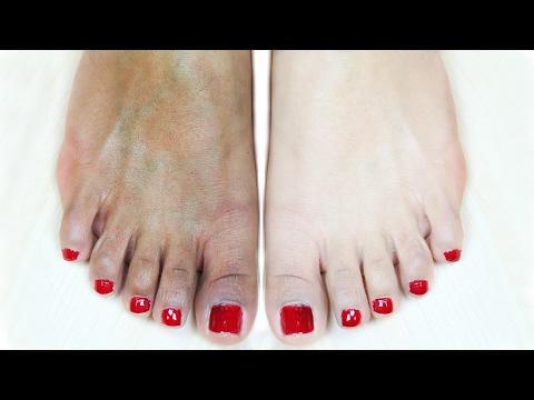 Feet Whitening Pedicure At Home - Suntan Removal | Anaysa