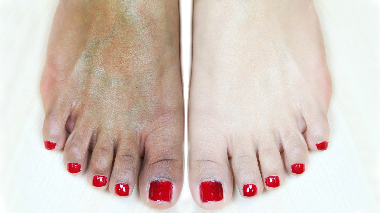 images Home Pedicure: Apple Cider For YourFeet