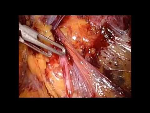 Vasektomie in Köln - YouTube