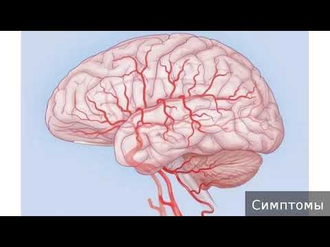 Гипертензивная энцефалопатия. Как лечить гипертензивную энцефалопатию.