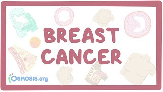 Breast cancer - causes, symptoms, diagnosis, treatment, pathology