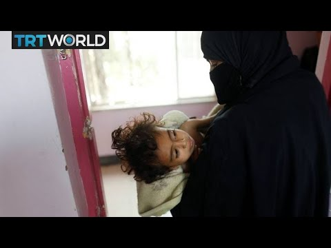 The War in Yemen: UN says Yemen &39;a living hell&39; for children