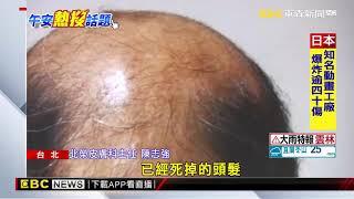 禿頭患者的福音!「拉撐」皮膚可刺激毛髮再生?
