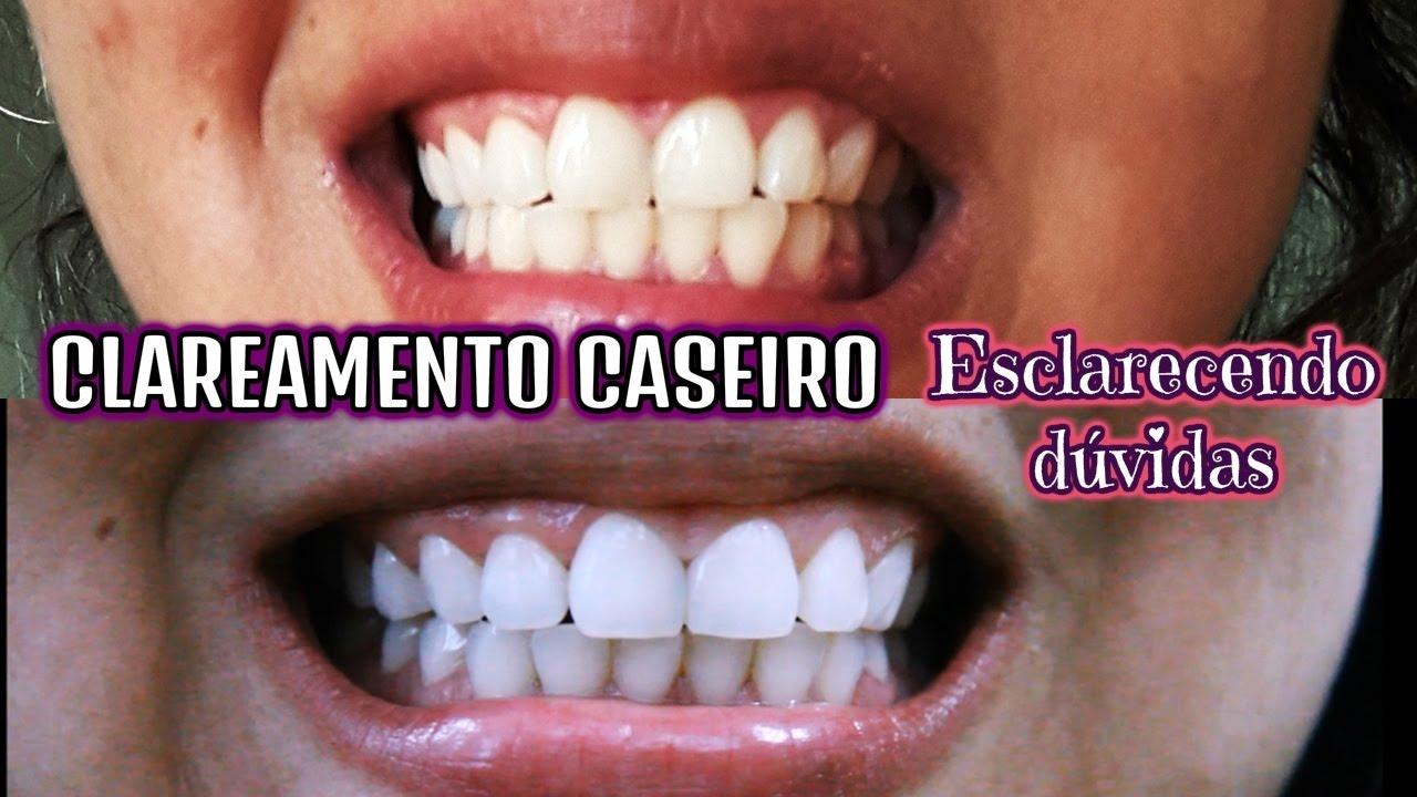 Dentes Brancos Em 2 Minutos Como Clarear Os Dentes De Forma