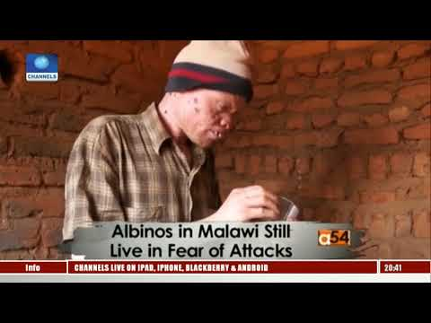 Attacks: Dangerous Times For Albinos In Malawi|Africa 54|