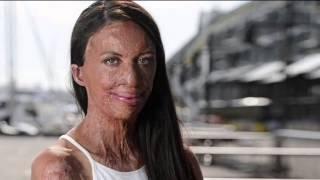 Mujer con la cara quemada se casa con su novio