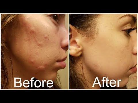 How I Got Rid Of My Hormonal Acne FOREVER!