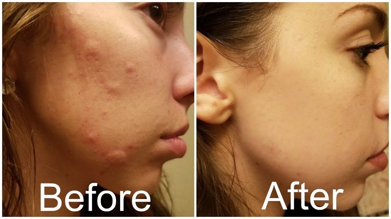 How I Got Rid Of My Hormonal Acne Forever