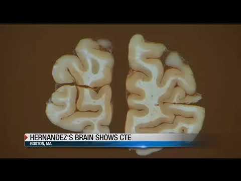 Aaron Hernandez's brain suffered severe truama
